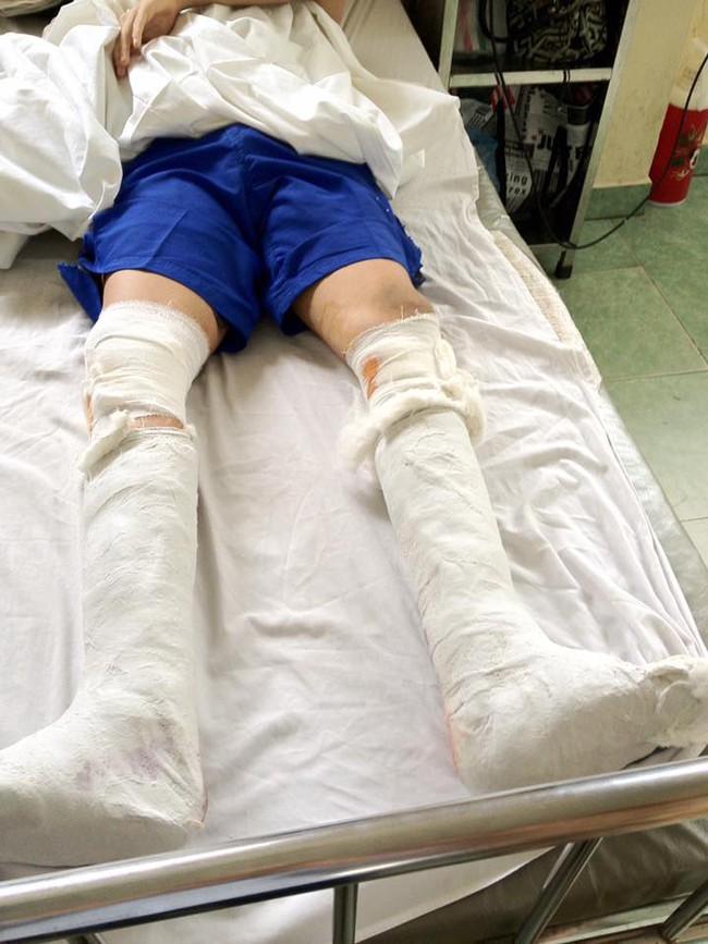 Nhật ký kéo dài chân từ 1m67 đến 1m76 (9 cm) của chàng trai Hà Nội - ảnh 7