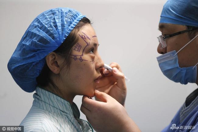 Mỹ nhân xứ Trung miệt mài 10 năm phẫu thuật thẩm mỹ để có nhan sắc giống Phạm Băng Băng - Ảnh 3.