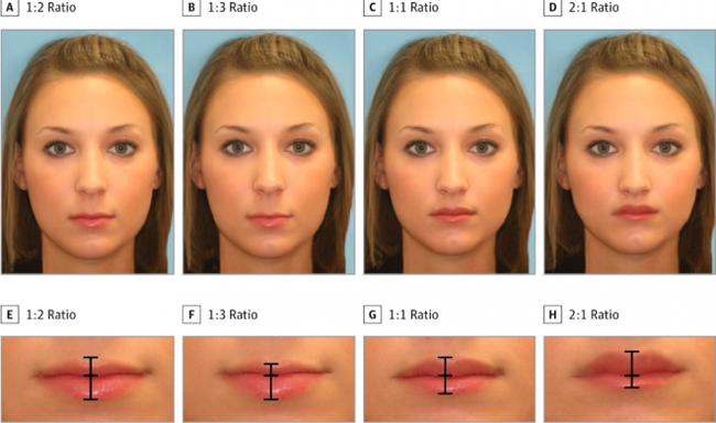 Tìm ra tiêu chuẩn cho đôi môi hoàn hảo được nhiều người khao khát nhất - Ảnh 1.