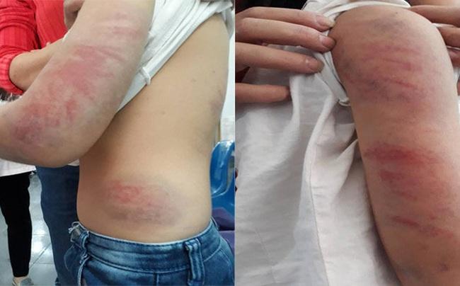 Bố say rượu liên tục đánh, đạp vào bụng con gái 9 tuổi ở Vĩnh Phúc - Ảnh 1.
