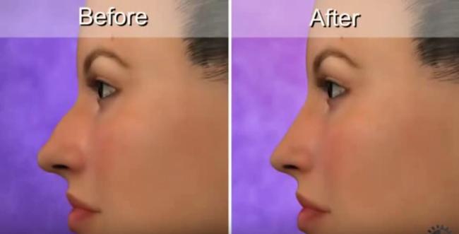 Phẫu thuật nâng mũi đơn giản không mà sao ngày càng nhiều người lựa chọn loại hình làm đẹp này - Ảnh 10.