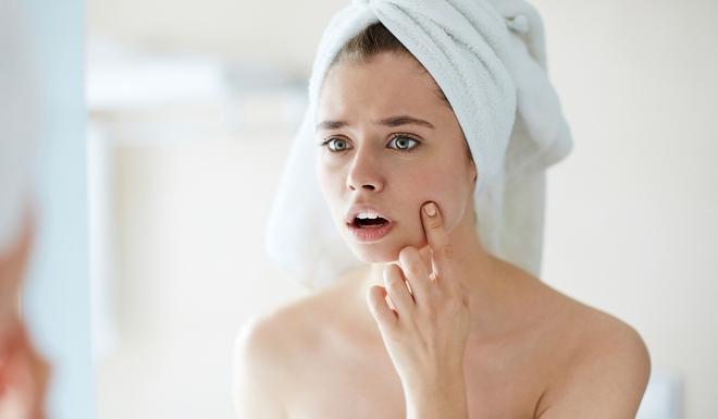 5 dấu hiệu nhận biết làn da đang ngày càng xấu đi do căng thẳng quá mức gây ra - Ảnh 1.