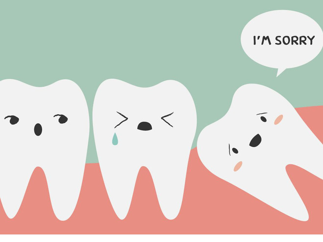 Tìm hiểu các triệu chứng khi mọc răng khôn để có cách đối phó tốt hơn - Ảnh 3.