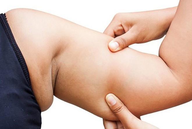 Tất tần tật về các loại mỡ trong cơ thể và cách loại bỏ hiệu quả nhất - Ảnh 1.