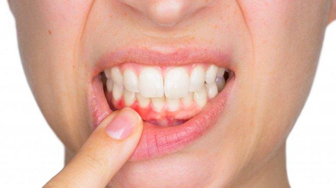 Bạn sẽ không dám lười đánh răng thêm lần nào nữa nếu biết tác hại kinh người sau - Ảnh 4.