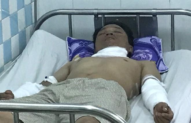 Quảng Nam: Nổ thiết bị ở nhà máy gạch, 4 công nhân bị bỏng nặng - Ảnh 1.