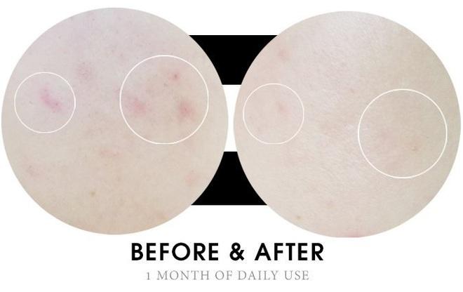 Nếu đang khổ sở vì mụn đầu đen, bạn chỉ cần dùng 3 sản phẩm BHA này là da sạch mướt đến từng lỗ chân lông - Ảnh 11.