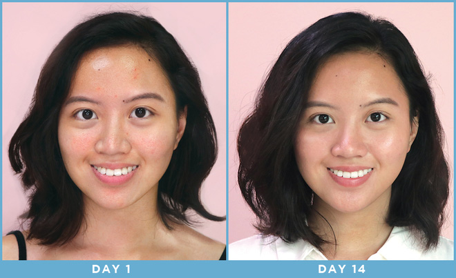 Cô nàng này đã dùng thử mặt nạ công nghệ ánh sáng và đây là kết quả kì diệu - ảnh 13