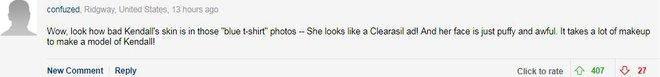 Không photoshop, siêu mẫu quốc tế như Kendall Jenner cũng lộ làn da nổi mụn sần sùi kém sắc! - Ảnh 5.