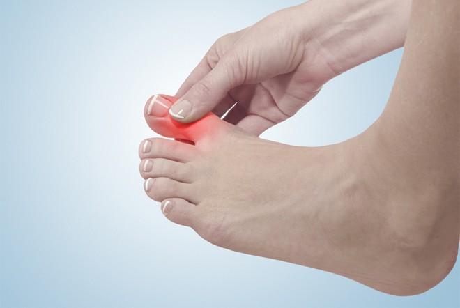 3 dấu hiệu ở chân mà bạn không nên chủ quan bỏ qua vì có thể đó là bệnh nguy hiểm - Ảnh 1.
