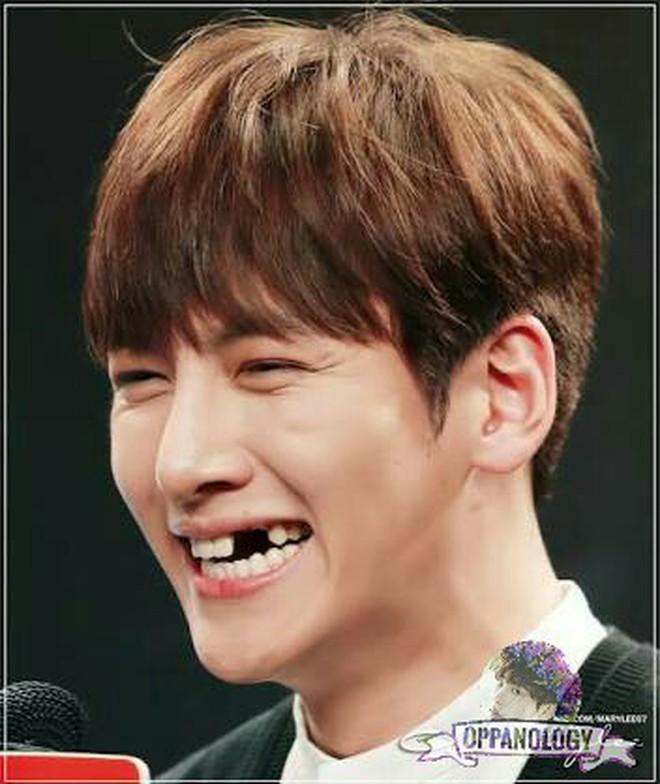 Thử thách cực đại: Khi 12 mỹ nam hàng đầu xứ Hàn cũng không vượt nổi qua ải... sún răng - Ảnh 20.