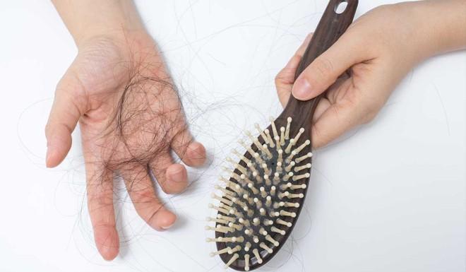 Phân biệt tóc rụng sinh lý và tóc rụng bệnh lý để biết lúc nào cần đi khám ngay - Ảnh 3.