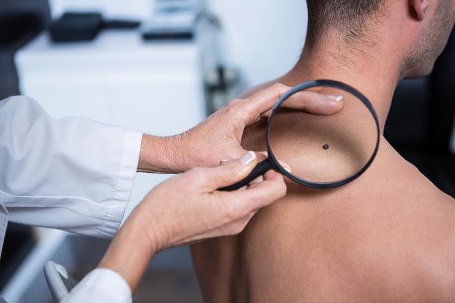 5 dấu hiệu sớm cảnh báo ung thư mà con trai không nên bỏ qua - Ảnh 3.