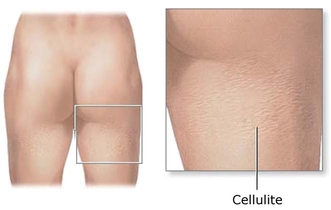 Tất tần tật về các loại mỡ trong cơ thể và cách loại bỏ hiệu quả nhất - Ảnh 5.