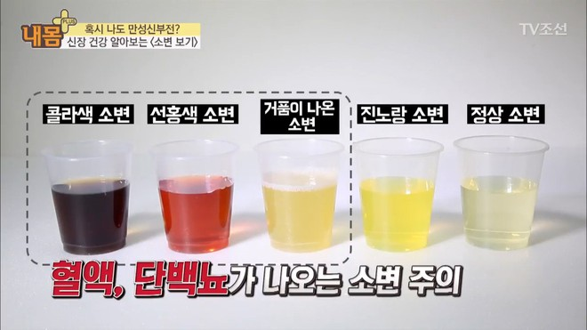 Bác sĩ Hàn Quốc hướng dẫn cách nhìn nước tiểu xác định xem cơ thể đang mắc bệnh gì