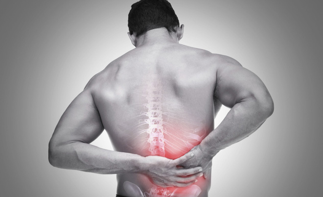 Đừng xem thường các chứng đau lưng bởi có khả năng bạn bị mắc các bệnh rất phổ biến - Ảnh 2.