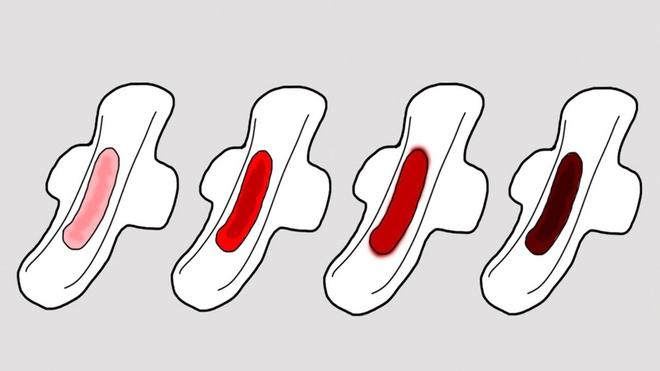 5 dấu hiệu bất thường của chu kỳ kinh nguyệt mà bạn nên lưu ý và đi khám ngay - ảnh 2