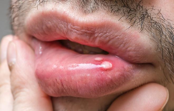 5 dấu hiệu sớm cảnh báo ung thư mà con trai không nên bỏ qua - Ảnh 4.