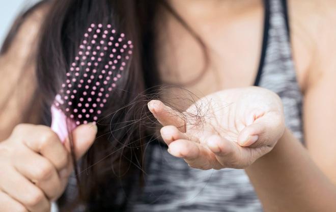 Phân biệt tóc rụng sinh lý và tóc rụng bệnh lý để biết lúc nào cần đi khám ngay - Ảnh 5.