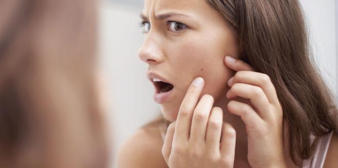 5 dấu hiệu nhận biết làn da đang ngày càng xấu đi do căng thẳng quá mức gây ra - Ảnh 4.