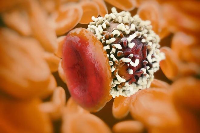 Nam giới cũng cần đề phòng ung thư vú với 6 dấu hiệu dễ nhận biết sau - Ảnh 3.