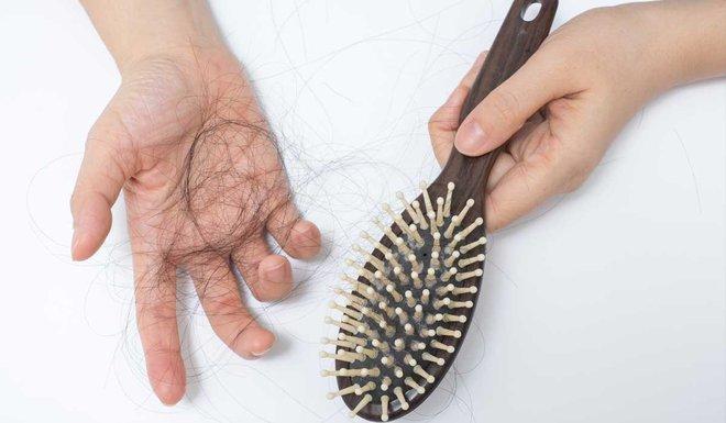 Để tóc ướt đi ngủ, bạn có nguy cơ đối mặt với 5 vấn đề sức khỏe sau - ảnh 2
