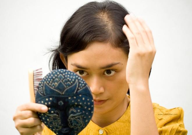 Phân biệt tóc rụng sinh lý và tóc rụng bệnh lý để biết lúc nào cần đi khám ngay - Ảnh 2.