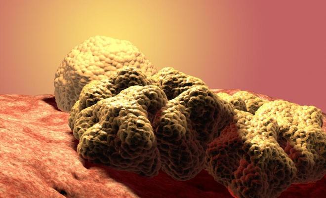 Nam giới cũng cần đề phòng ung thư vú với 6 dấu hiệu dễ nhận biết sau - Ảnh 5.