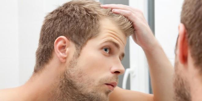 Loại hormone được tình nghi là thủ phạm gây nên chứng hói đầu ở con trai là gì? - ảnh 2