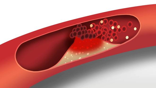 Lợi ích bất ngờ từ việc ăn xoài có thể phòng ngừa bệnh tim mạch và tiểu đường - Ảnh 2.