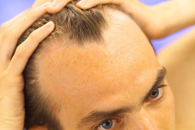 Loại hormone được tình nghi là thủ phạm gây nên chứng hói đầu ở con trai là gì? - ảnh 3