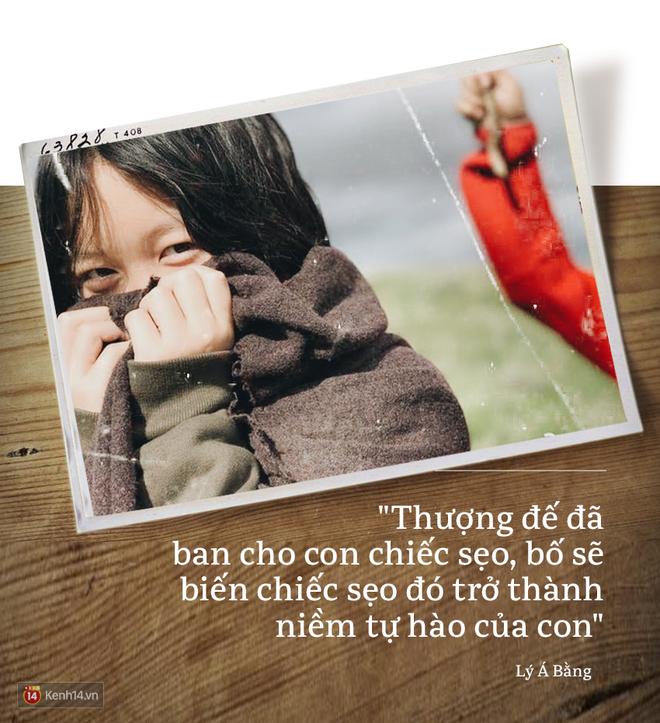 Lý Á Bằng: Người cha tuyệt vời và nỗi đau in hình nụ cười của cô con gái mắc dị tật hở hàm ếch - Ảnh 8.
