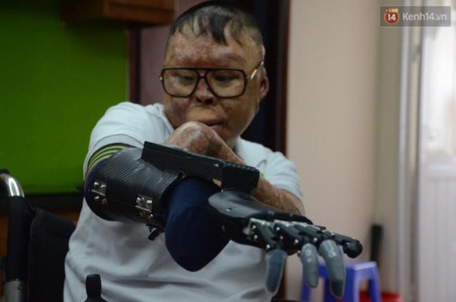 """Chiến sĩ duy nhất sống sót sau vụ rơi trực thăng Hòa Lạc nghẹn ngào với đôi tay giả: """"Tôi vui sướng, hạnh phúc đến quên cả ăn uống"""" - ảnh 3"""