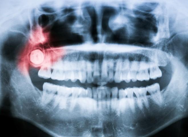 Đây là những cách để giảm sự hoành hành của chiếc răng ngu - Ảnh 1.