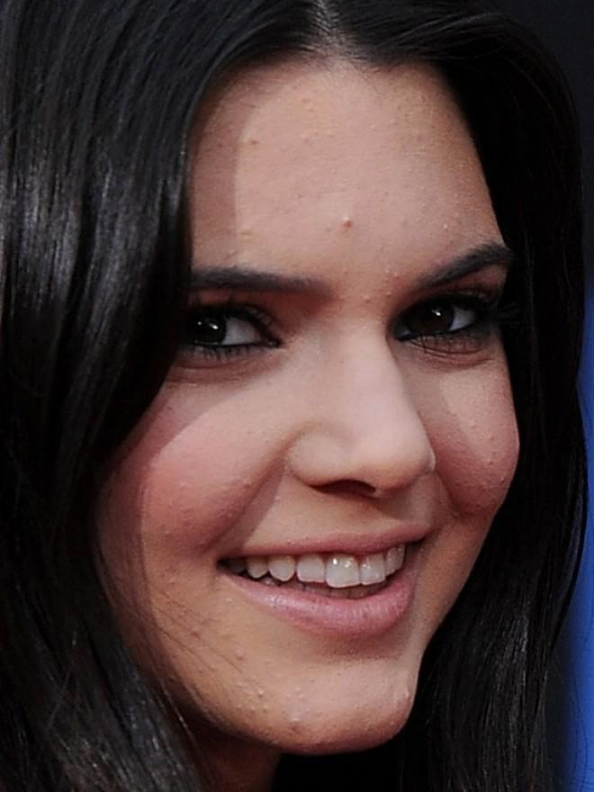 Không photoshop, siêu mẫu quốc tế như Kendall Jenner cũng lộ làn da nổi mụn sần sùi kém sắc! - Ảnh 8.