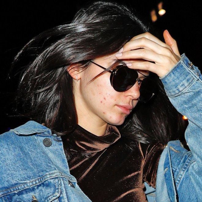 Không photoshop, siêu mẫu quốc tế như Kendall Jenner cũng lộ làn da nổi mụn sần sùi kém sắc! - Ảnh 9.