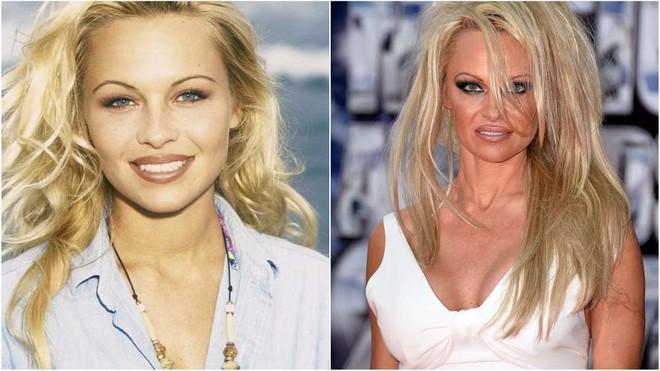 Nhan sắc thay đổi ngược của các sao Hollywood: Khi vô danh còn đẹp hơn cả lúc đã nổi tiếng - Ảnh 1.