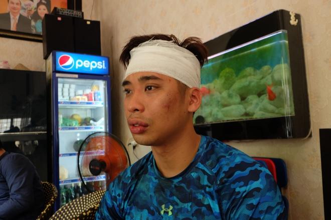 Đi cùng bạn gái đến California Fitness, nam thanh niên bị nhóm HLV đánh rách đầu - www.TAICHINH2A.COM