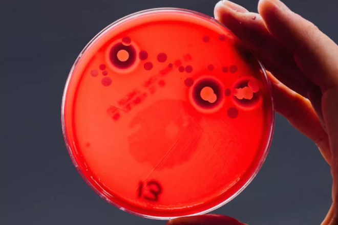 Dựng tóc gáy với những vi khuẩn có trên điện thoại của bạn ngay lúc này - Ảnh 2.