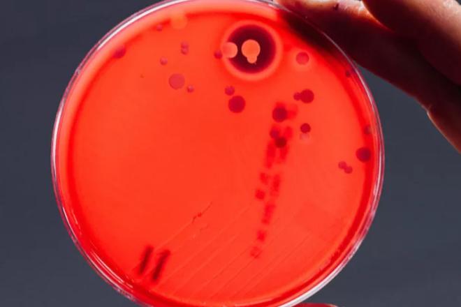 Dựng tóc gáy với những vi khuẩn có trên điện thoại của bạn ngay lúc này - Ảnh 3.