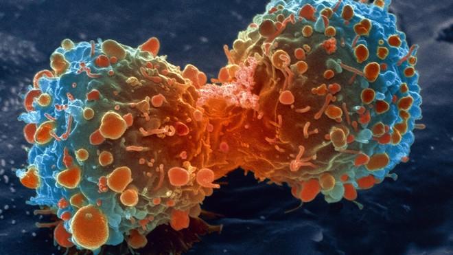 Giảm hẳn 43% nguy cơ ung thư chỉ bằng việc thay đổi vài thói quen xấu mỗi ngày - Ảnh 1.