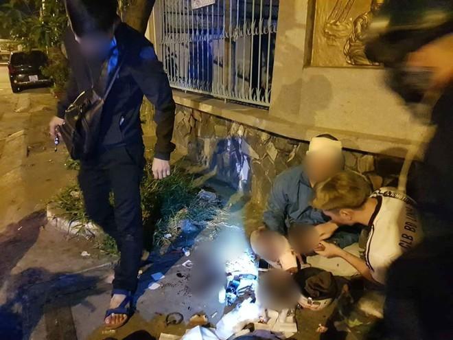 """Truy đuổi bắt trộm chó, """"hiệp sĩ"""" ở Sài Gòn bị """"cẩu tặc"""" tấn công nhập viện cấp cứu - Ảnh 1."""