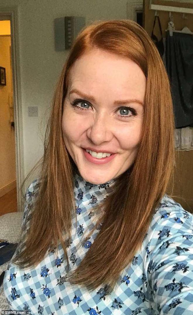 Cô gái người Anh bị u não suốt 9 năm mà không hề hay biết chỉ vì gặp phải triệu chứng mà bất kỳ ai cũng cho là vô hại - ảnh 2