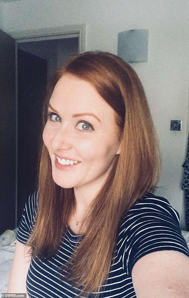 Cô gái người Anh bị u não suốt 9 năm mà không hề hay biết chỉ vì gặp phải triệu chứng mà bất kỳ ai cũng cho là vô hại - ảnh 1