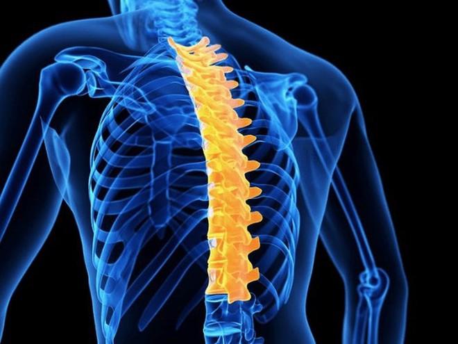 Những điều cần biết về bệnh cong vẹo cột sống - Ảnh 1.