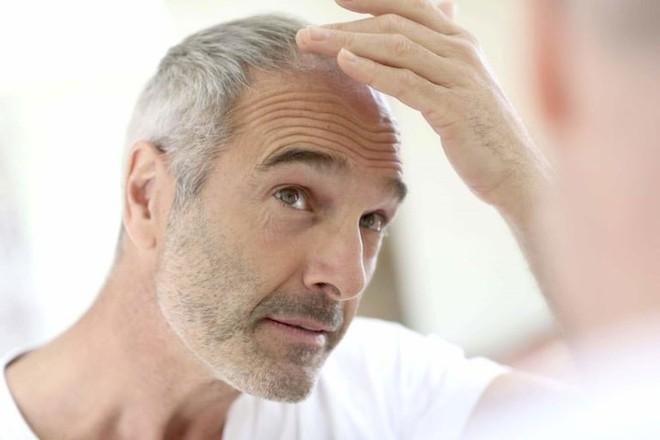 9 biểu hiện giúp bạn phát hiện bệnh qua khuôn mặt - ảnh 8