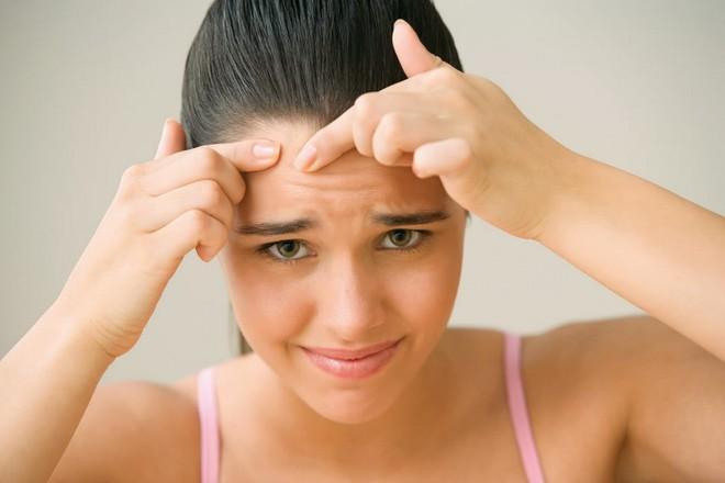5 nguyên tắc quan trọng giúp con gái thoát khỏi tình trạng mụn chi chít đầy ở vùng trán - Ảnh 5.