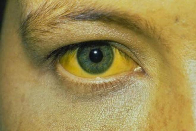 Gan của bạn có thể đã bị nhiễm độc nếu gặp phải 5 dấu hiệu bất thường sau - ảnh 4