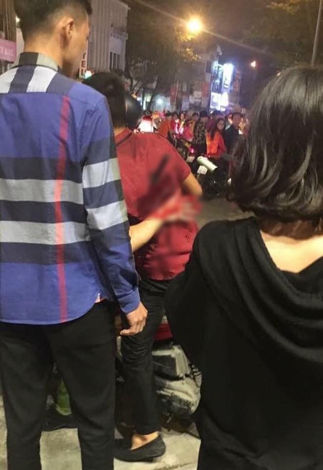 Ẩu đả, tai nạn giao thông liên tiếp trong đêm đi bão mừng chiến thắng của đội tuyển Việt Nam: Vui thôi đừng vui quá! - ảnh 6