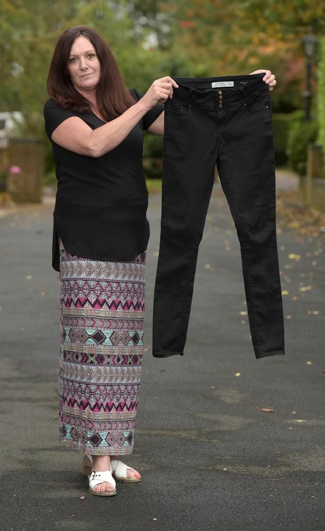 Người phụ nữ suýt phải cưa chân vì cố tình mặc quần jeans quá chật - ảnh 1